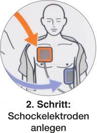 actiomedic-defibrillator-aed-3100-anwendung-02