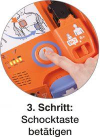 actiomedic-defibrillator-aed-3100-anwendung-03